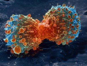 celula canceroasa neuroblastom