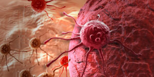 Bebelusii se pot naste cu cancer