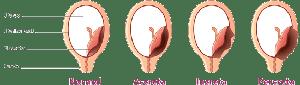 placenta accreta increta si percreta-min (1)