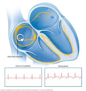 ritm cardiac excesiv