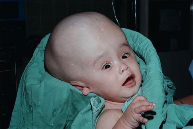Hidrocefalia Congenitala