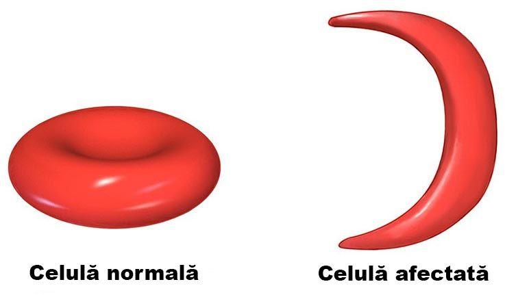 Anemia falciforma in timpul sarcinii